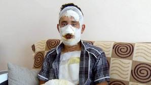 Terhisine 2 ay kalan askerin üzerine kolonya dökülerek yakıldığı iddia edildi