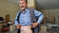 Pompalı tüfekle vuruldu, bağırsaklarını torbada taşıyor