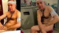 Fransız doktor, malzeme yetersizliğini çıplak poz vererek protesto etti
