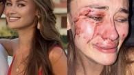 Bakan Ersoy dediğini yaptı; model Daria Kyryliuk'ın da darp edildiği Momo Beach kapatıldı