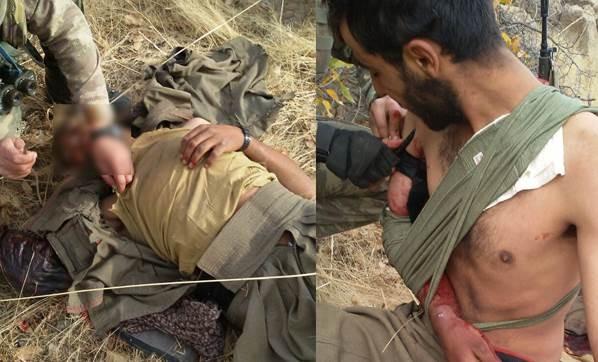 yarali-teroristi-askerler-tedavi-etti-2516574